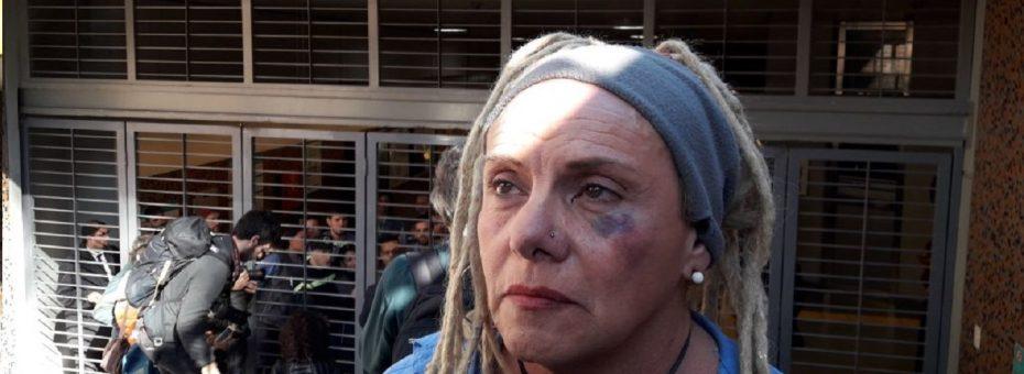 """Represión en el subte porteño: """"Me levantó de la ropa y me dio una piña"""""""